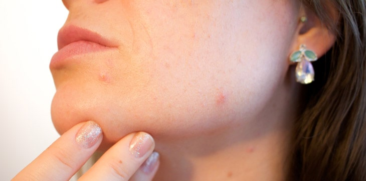 woman have acne
