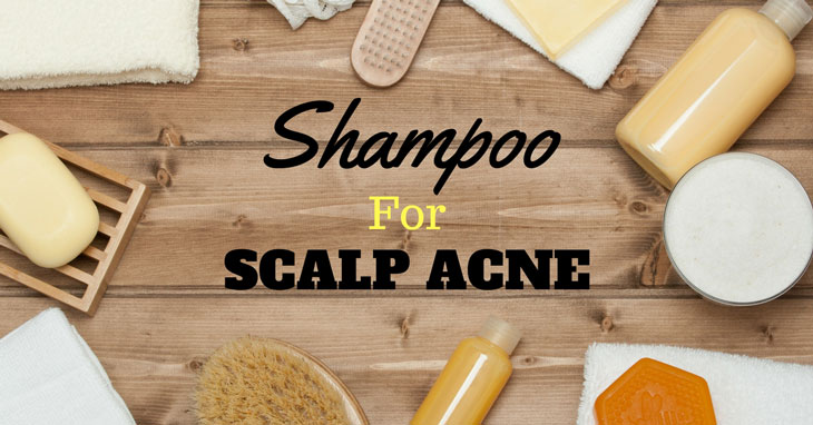 Best Shampoo For Scalp Acne (Sep. 2017) - Buyer's Guide Reviews