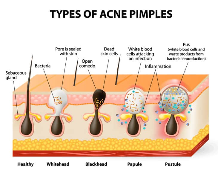 types acne pimples