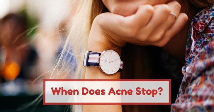 when does acne stop