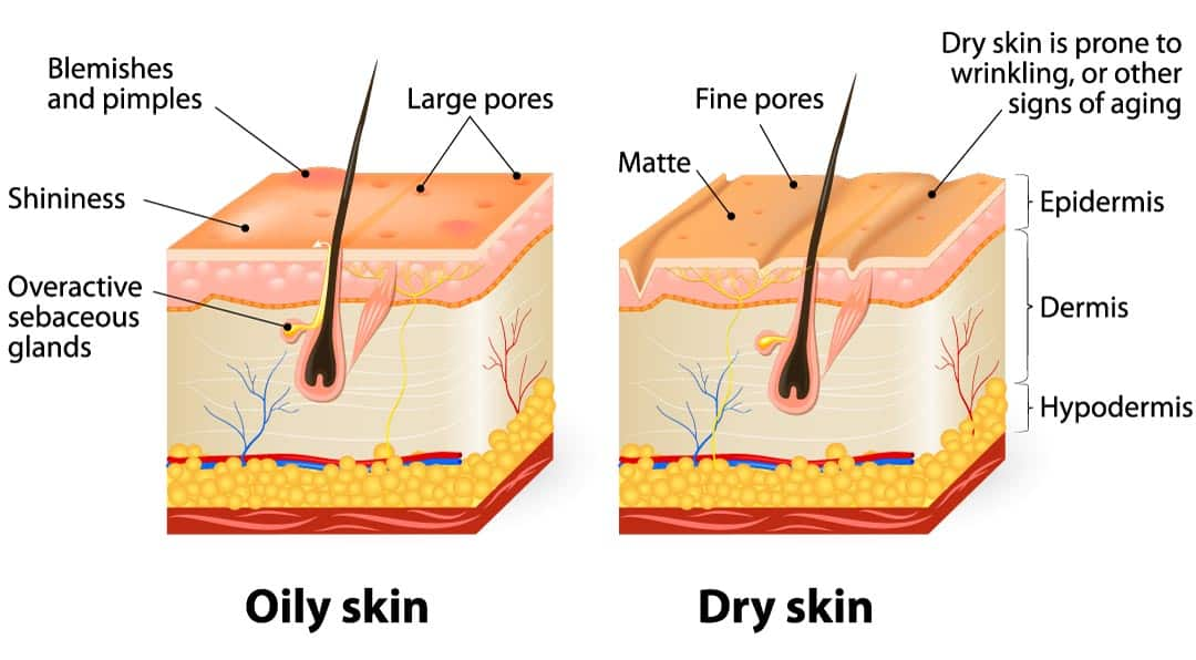 dry skin type vs oily skin type